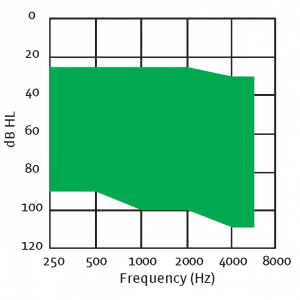 Resound MA3T80-V